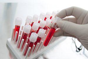 autoanalisi-sangue-farmacia-treviso